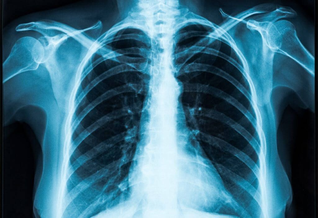 Colorado marijuana vaping, Colorado marijuana vape aerosol testing rules address key health issues